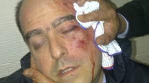 """""""Lamentamos que al diputado Julio Borges le haya pasado eso, pero el hecho de que él tenga un golpe no significa que él no haya sido el agresor"""", ... - julio_borges_foto610x342"""