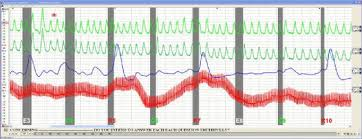 What The Polygraph Examination Is And Is Not