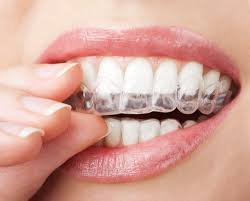 how invisalign changes your face