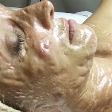 Nạ Enzym - Vũ khí lợi hại của làn da