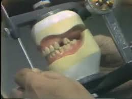 Teeth Setting Setting Posterior 0 Versus 0 Degree Artificial Teeth