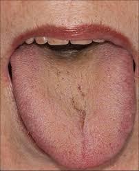 Black Coated Tongue In Integrative Medicine An Alarm Signal