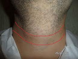 Крем для депиляции который удаляет волосы навсегда