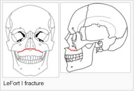 Le Fort Fracture Facial Fracture Management Handbook Lefort Fractures Iowa Head