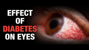 Image result for diabetes and eye