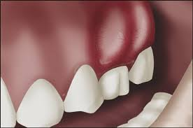 pain treatment for abscess tooth