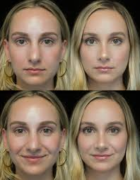 Is a nose job covered by insurance ? Your Guide To Rhinoplasty From Cost To Recovery Time Life In Plastic Allure