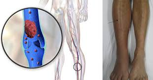 Leg Wikipedia Swollen Feet 9 Alarming Warning Signs You Should Never Ignore