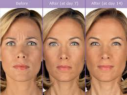 How Long Does Botox Last How Long Does Botox Last Los Angeles Ca Medical Spa
