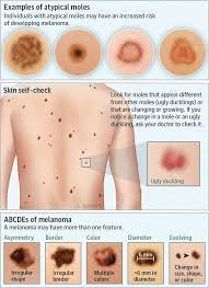 Atypical Moles Different Types Diagram Dermatology Nurse