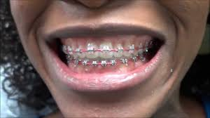 teeth bleaching : Blog Stunning How To Get Cheap Braces Do Braces ...