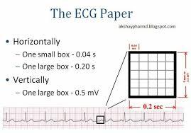 Simple Explanation Of The Ecg Graph Paper Ekg Pinterest Ekg