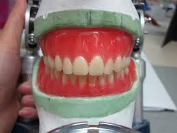 Teeth Setting Liz Love Is All We Need Complete Dentures