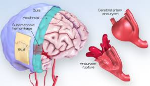 What You Should Know About Cerebral Aneurysms American