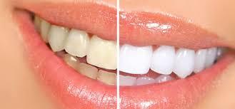 Image result for दांतों के रोग