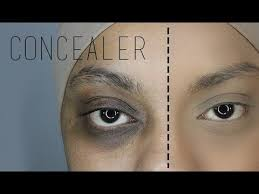 concealing extreme dark under eye