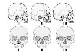Le Fort Fracture Cme 1 5 14 Maxillofacial Trauma Charlies Ed