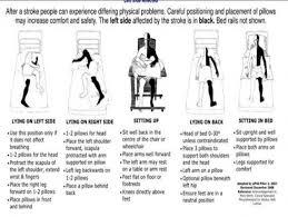 Hemiplegia Physiopedia