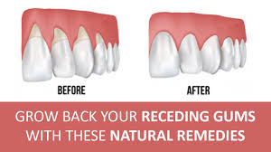 gums pain relief home remedies
