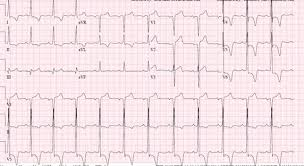 Blood Pressure Chart For 35 Year Old Man A 35 Year Old Man Presents With Non Cardiac Chest Pain And