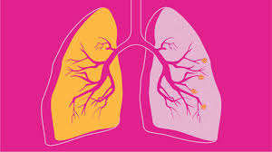 Respiratory Disease Fact Chart Copd Facts Statistics And You