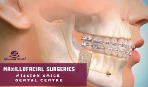 maxillo surgeries performed