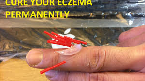 How to cure eczema permanently - Self-acupuncture #5 - YouTube