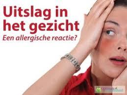 allergische reactie nek