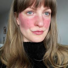 11 people describe what it s really like to have rosacea