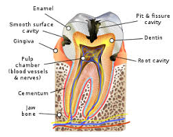 Tooth Decay Wikipedia