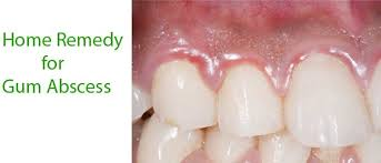 natural pain relief for teeth and gums