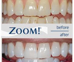 full size of whitening what is the best teeth whitening kit b ie utf8node amazing