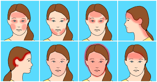 10 Common Headaches And What They Mean