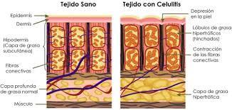 Combatir La Celulitis