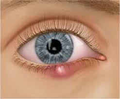 eyelid lumps and ps dr james linder