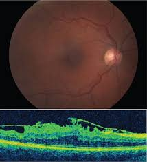Retina And Vitreous - Review Questions In Ophthalmology