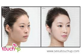 cheek contour before and after. advanced face contouring cheek contour before and after