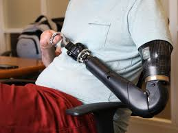 Bio Design Prosthetics Bionic Limbs Learn To Open A Beer Wired