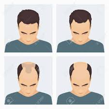 Male Pattern Baldness Stages