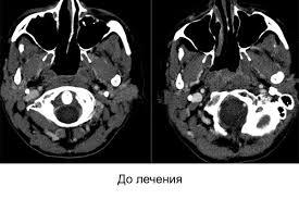 Результаты лечения Украинский Центр Томотерапии После курса лечения контрольное обследование показало полный регресс опухоли