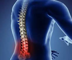 The most common cause of lower back pain is a muscle strain or spasm as well as other soft tissue injuries around the lower back