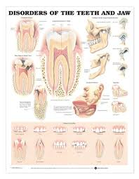 Disorders Of The Teeth And Jaw Laminated Anatomical Chart