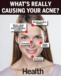 Acne Face Mapping What Acne Face Mapping Can Tell You About