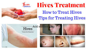 Hives Treatment - How to Treat Hives - Tips for Treating Hives - YouTube