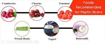 Diet For Peptic Ulcer Stomach Ulcers What To Eat And