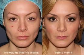 can lip fillers make your nose look smaller