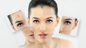 Imagini pentru cosuri acnee