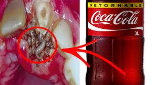 10 Enfermedades Por Las Que Nunca Volveras A Tomar Coca Cola