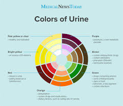Kidney Failure Urine Color Chart Bright Yellow Urine Colors Changes And Causes