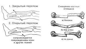 Реферат закрытые перломы конечностей и суставов реферат травмы  реферат закрытые перломы конечностей и суставов